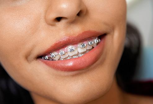 aparaty ortodontyczne praga południe