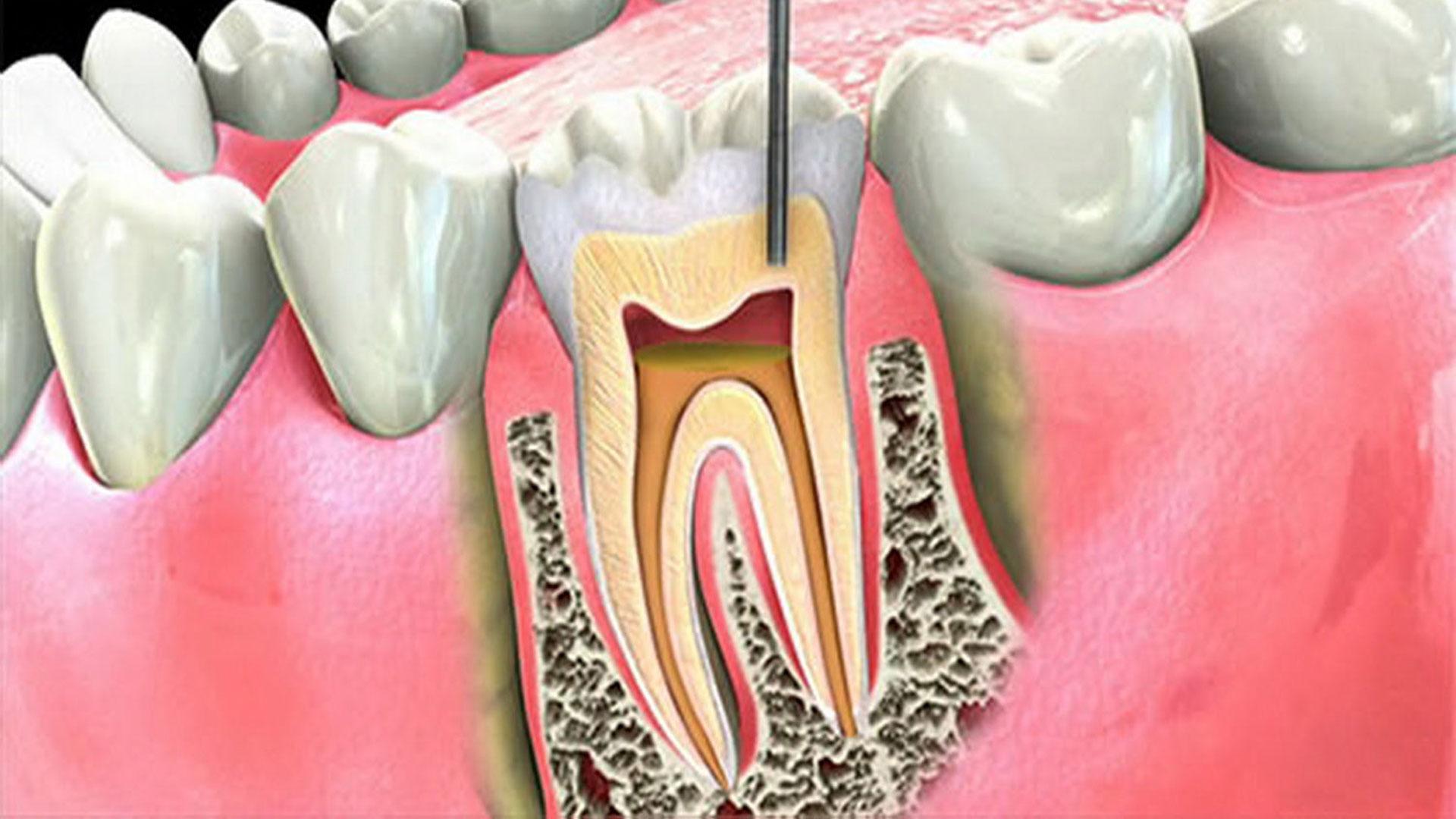 Leczenie endodontyczne Praga Południe